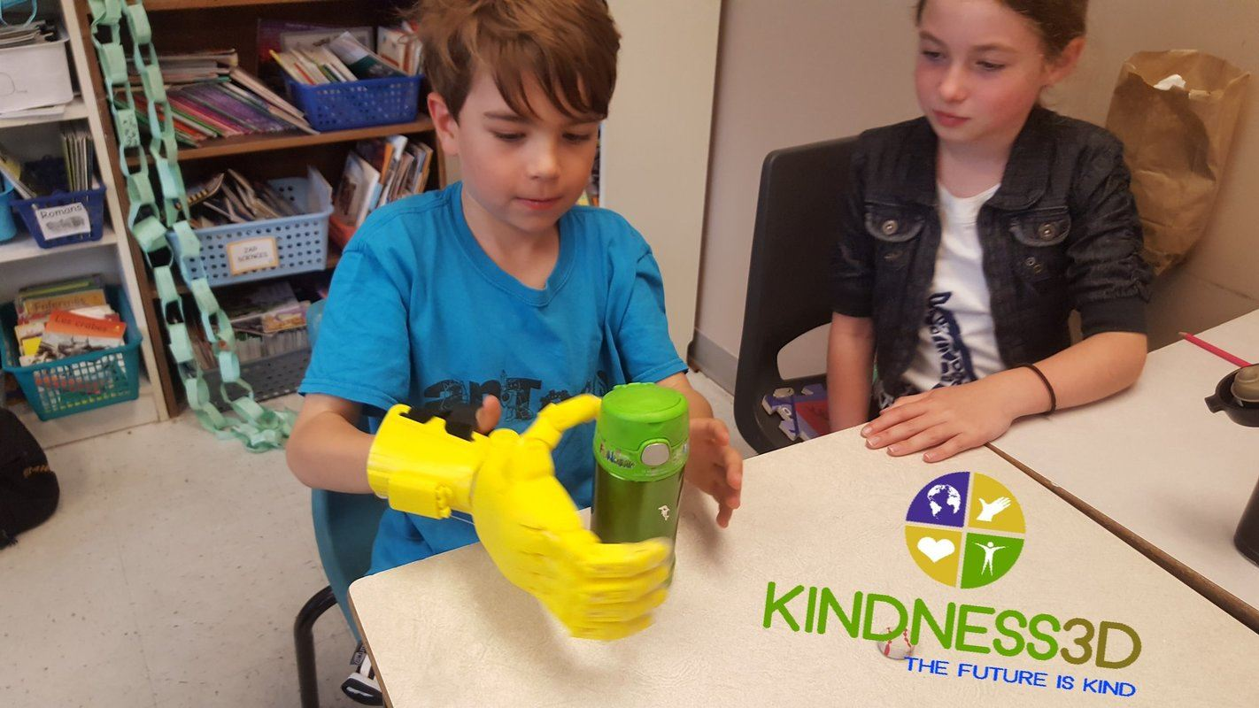 A student tries out a 3D-printed grabber hand at a school in Halifax, Nova Scotia. Kindness 3D takes plastic waste from recreational cannabis containers and turns them into prosthetic limbs.